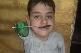 بالصور.. طفل بدون أطراف يستخدم القارورات الفارغة بدلا من يديه