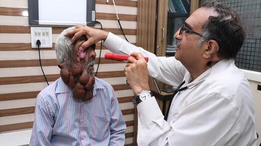 بالصور.. مرض جيني يذيب وجهه بكثرة الأورام 6