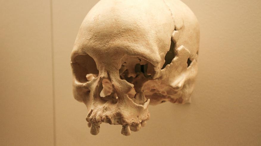 إكتشاف جمجمة عمرها أكثر من 10 آلاف عام في الصين