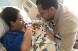 بالصور. ولادة طفل بدون جمجمة مكتملة!