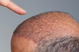 وفاة هندي بسبب عملية زرع شعر