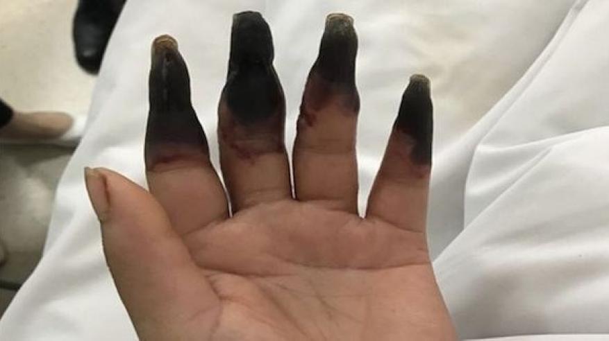 سر تحول أصابع ربة منزل إلى اللون الأسود