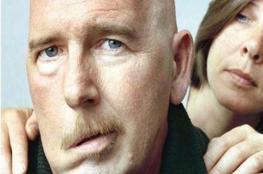 """""""الوجه الإلكتروني"""".. ثورة جديدة لعلاج الشلل الوجهي"""