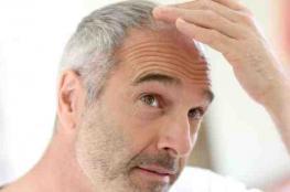 كشف سر الشعر الأبيض والصلع