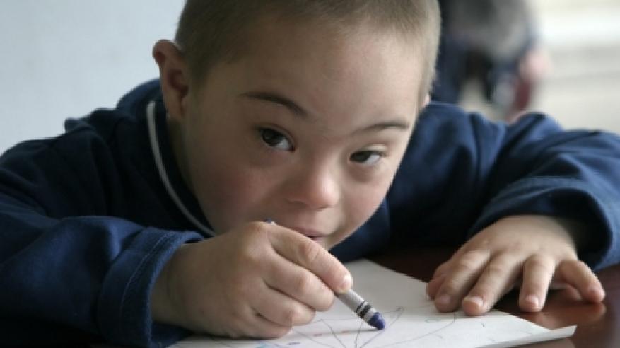 """مختصون ومواطنون: الدمج المجتمعي يساهم في تنمية مهارات أطفال """"متلازمة داون"""" وتحسين نوعية الحياة"""