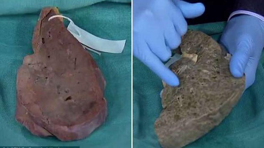 شاهد ماذا تفعل الكحوليات في الكبد