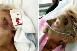 اعتداء وحشي على مريضة عجوز داخل مستشفى..بسبب الشخير!!