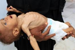الجارديان: معاناة المدنيين في اليمن .. جريمة