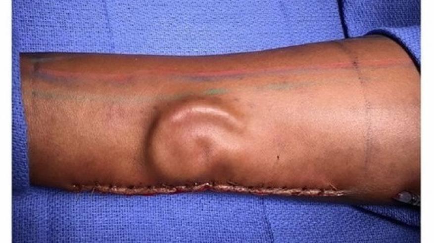 معجزة طبية.. زراعة أذن في ذراع امرأة