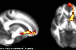 ممرات داخل المخ تدعم الثقة بالنفس .. تعرف على فوائدها