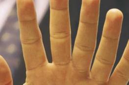 ابتكار نموذج لإصبع سادس في يد الإنسان