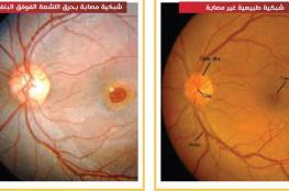 أطباء: النظر للكسوف يؤدي للعمى