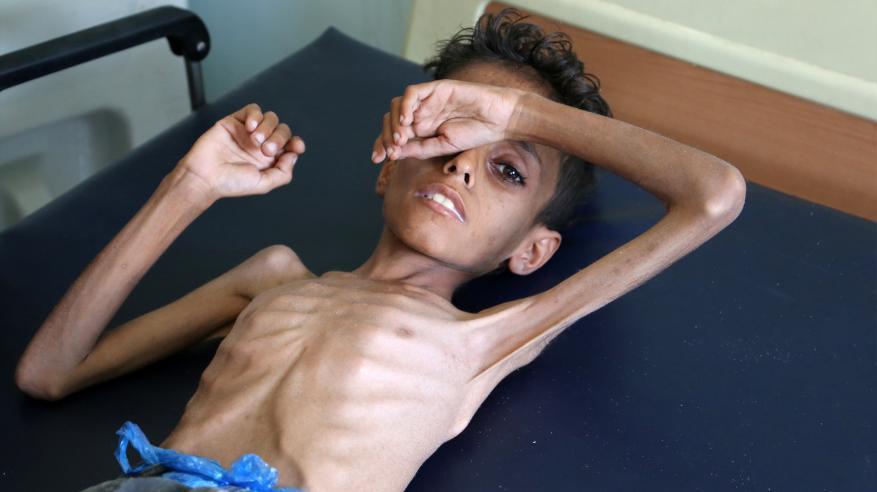 """أطفال اليمن في """"مقبرة الحرب"""".. والعالم يهيل التراب"""