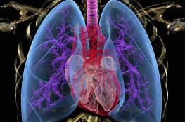 علاج قديم يساعد مرضى الانسداد الرئوي على التنفس