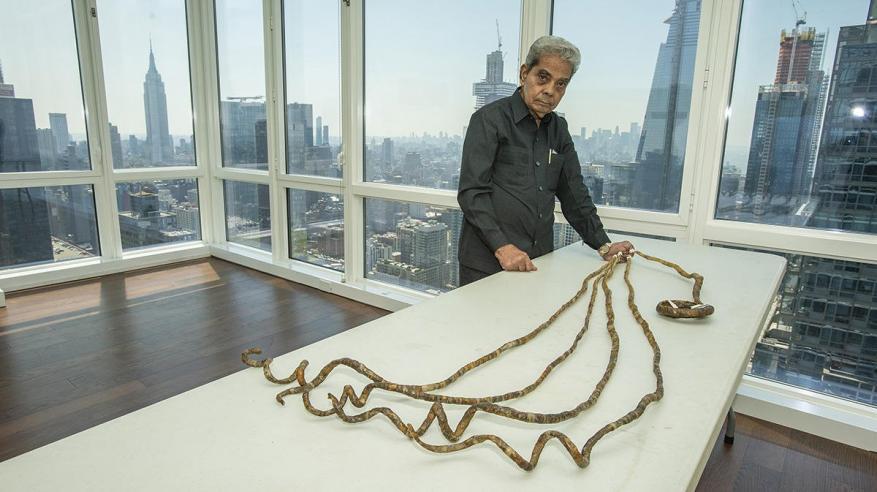 بالفيديو.. صاحب أطول أظافر في العالم يقصها للمرة الأولى