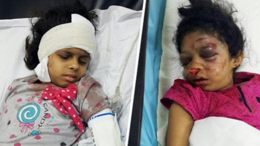 اعتداء وحشي لخادمة إثيوبية على أسرة في السعودية