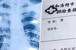 مُعلم صيني يدعي إصابته بالمرض لقضاء إجازة طويلة!