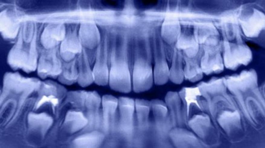 بالفيديو والصور.. 500 سن في فم صبي!