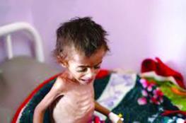"""""""وفاة الطفلة اليمنية أمل"""" يثير ضجة عالمية"""
