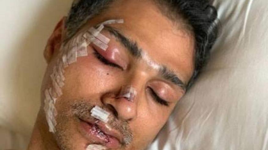 اعتداء وحشي على خبير طيران سعودي بماليزيا
