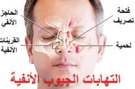 التهاب الجيوب الأنفية المزمن مرتبط بالتغيرات الخلوية