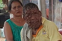 مئات الأورام تكسو جسد تايلندي.. والمرض ينتقل لإبنته