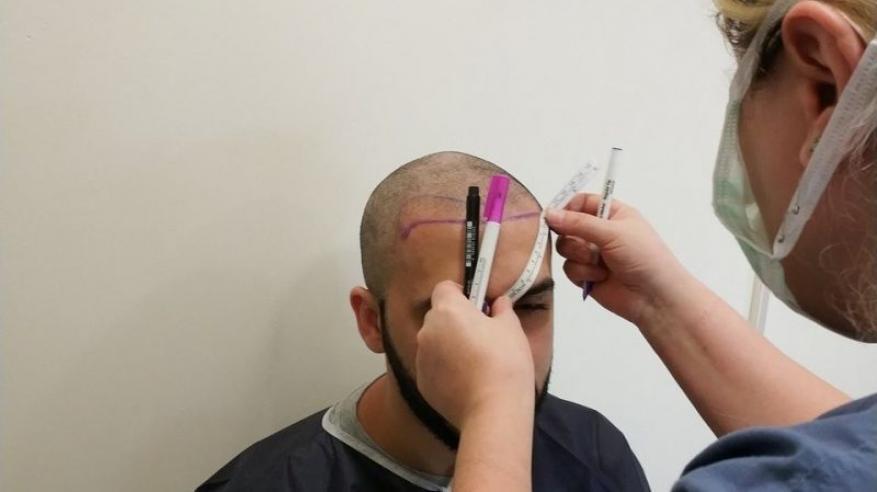 ذهب ليزرع شعر فمات أثناء العملية