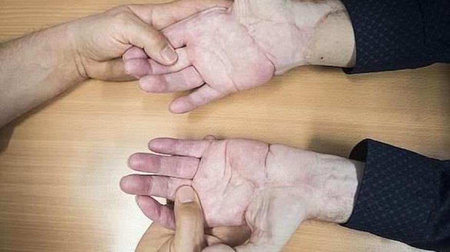 زرع يدين 1