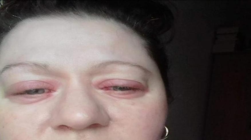 لغز المرأة التي تذرف الدماء من عينيها ويتساقط جلدها