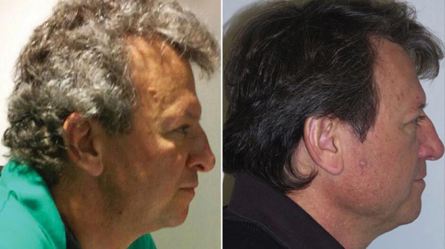 اكتشاف علاج كيمياوي للسرطان لا يُسقط الشعر