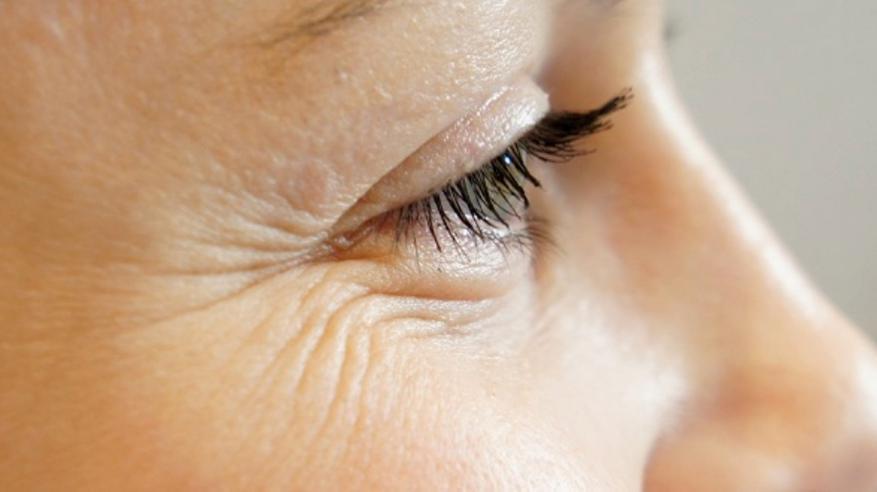 تقنية جديدة ثلاثية الأبعاد لعلاج تجاعيد الوجه