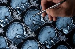 أمل جديد لمرضى أورام المخ بفضل الذكاء الاصطناعي
