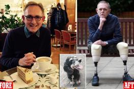 يفقد ساقيه وأصابع يده وجزء من وجهه بسبب كلب