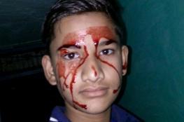بالصور.. مراهق يبكي دماً 10 مرات في اليوم