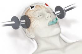 الصدمة الكهربائية.. صيحة جديدة لعلاج الاكتئاب