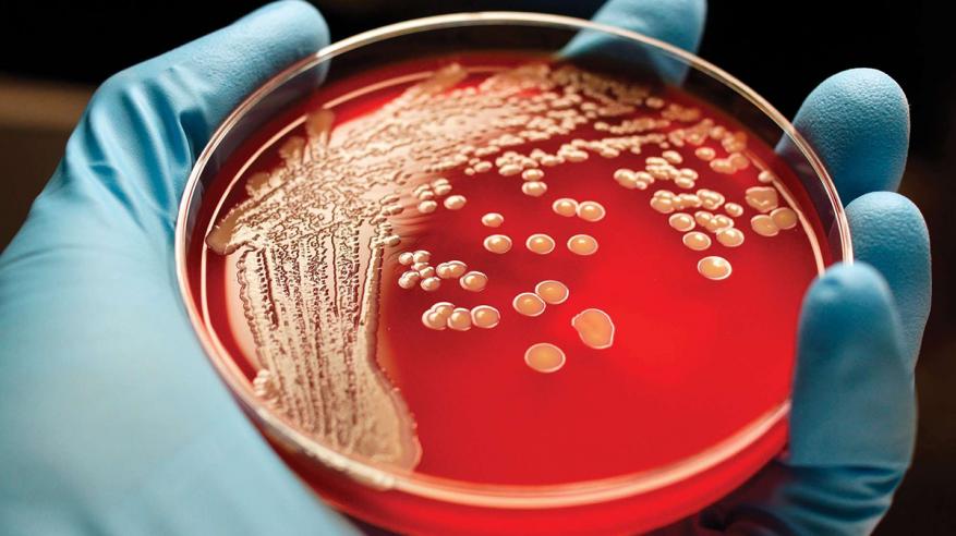 اكتشاف جديد لعلاج سرطان الدم